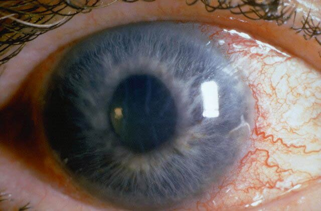 открытоугольная глаукома 1 степени
