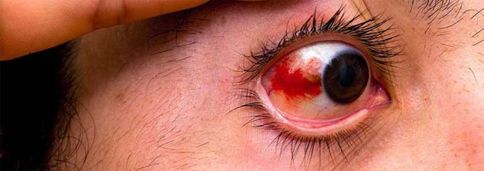 лечение повреждений роговицы глаза