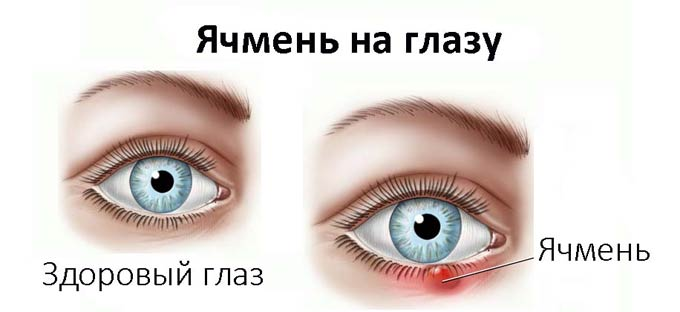 можно ли давить ячмень на глазу