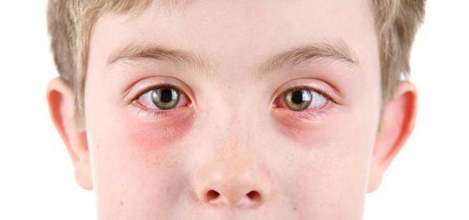 сколько дней заразен конъюнктивит