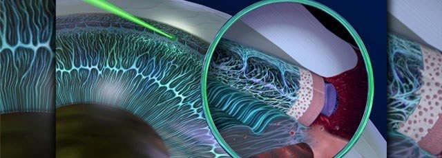 подготовка к лазерной операции при глаукоме