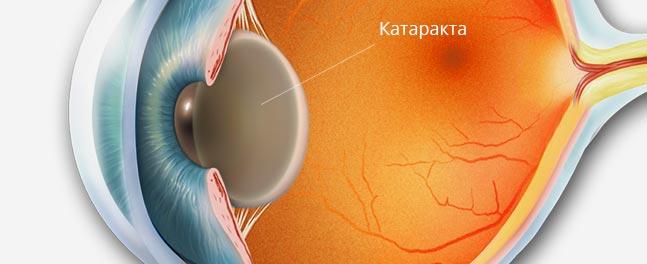катаракта при сахарном диабете