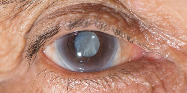 симптомы остроугольной глаукомы