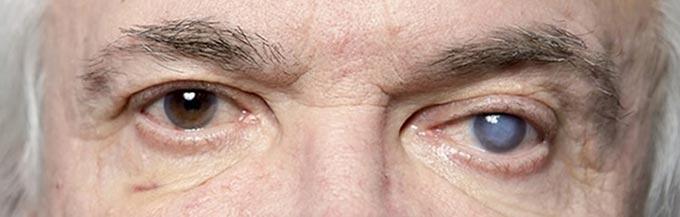 осложнения глаукомы