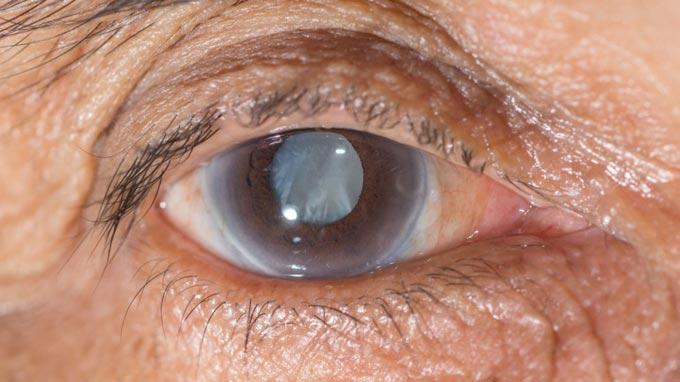 глаукома в старости
