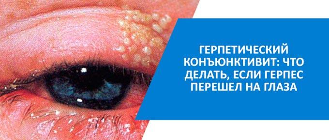 герпесный конъюнктивит