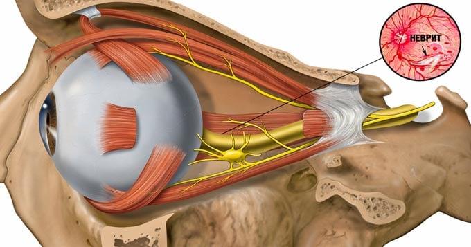 лечение неврита зрительного нерва