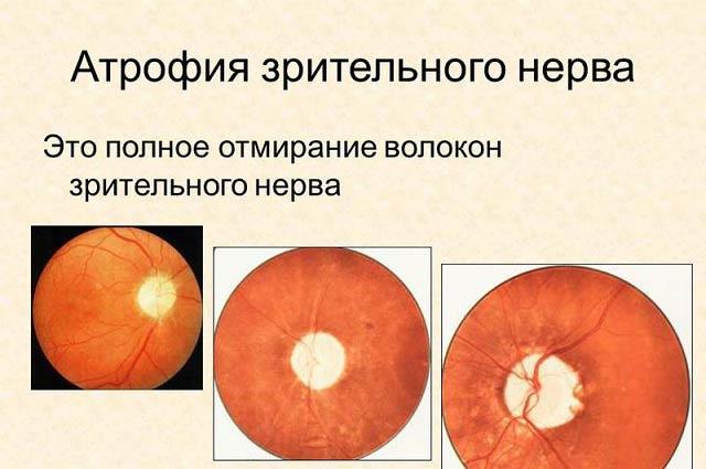 как лечить атрофию зрительного нерва