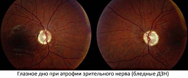 глазное дно при атрофии