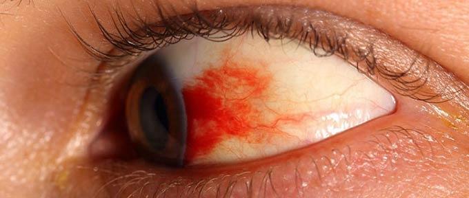 симптомы диабетической ретинопатии