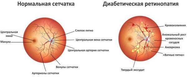стадии диабетической ретинопатии