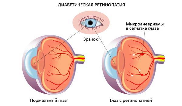 лечение ретинопатии при сахарном диабете