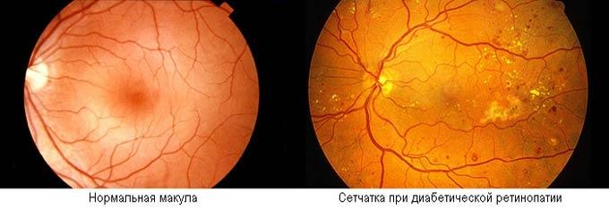 сетчатка при диабетической ретинопатии