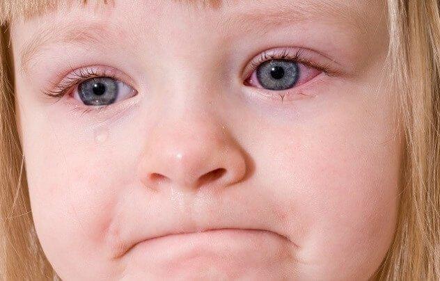 фолликулярный конъюнктивит у детей
