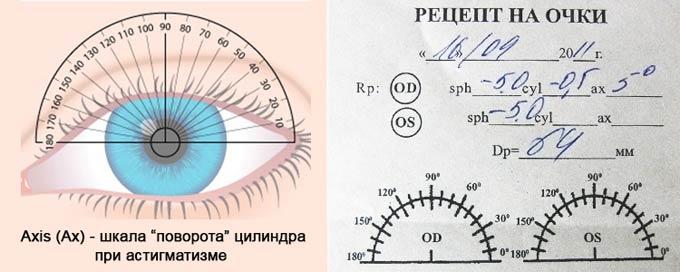 Выписывание очков при астигматизме thumbnail