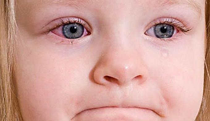 лечение аллергического конъюнктивита у детей