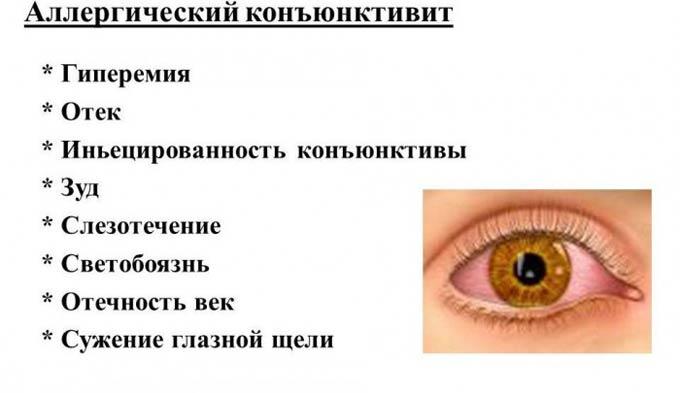симптомы аллергического конъюнктивита