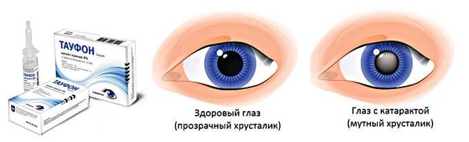 тауфон при катаракте