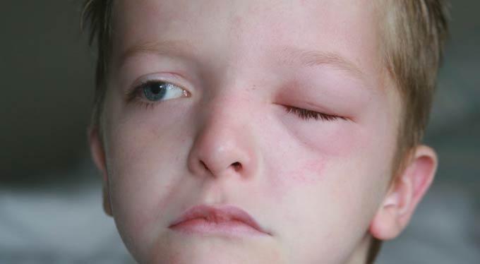 лечение блефарита у детей