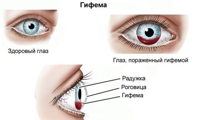 гифема