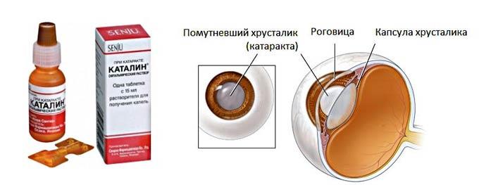 каталин от катаракты
