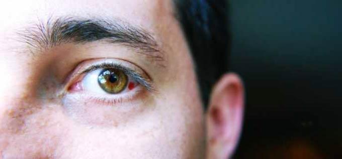 Удар роговицы глаза с кровоизлиянием thumbnail