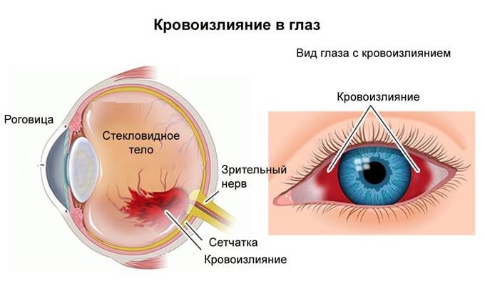 как убрать кровоизлияние в глазу
