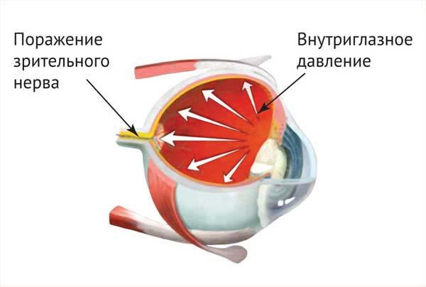 глазное давление у детей