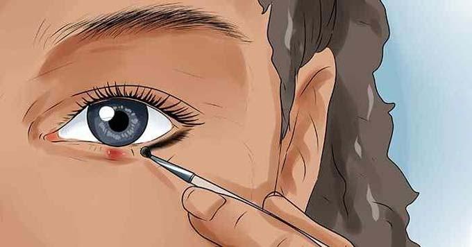 Ячмень под глазом лечение народными средствами