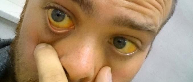 пожелтели белки глаз
