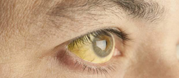 почему желтые белки глаз