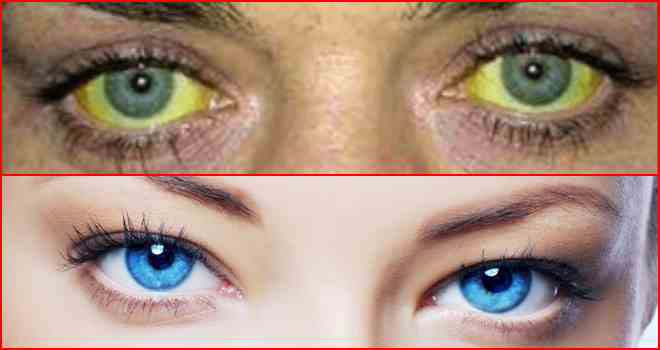 причины пожелтения глаз