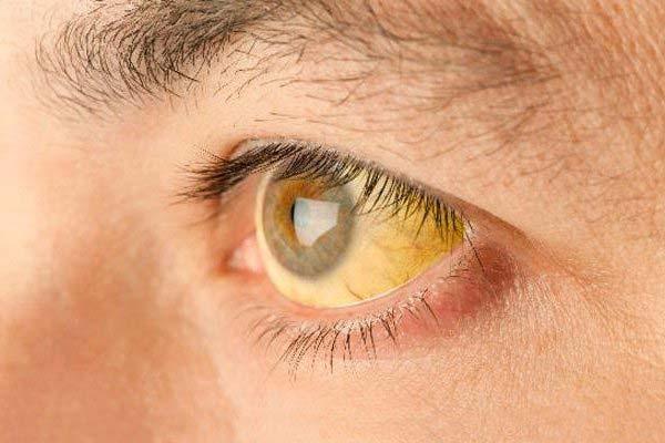 желтые белки по краям