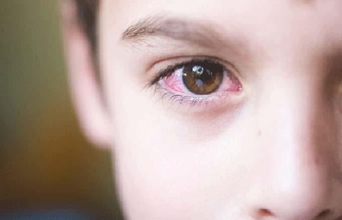 передается ли конъюнктивит у детей