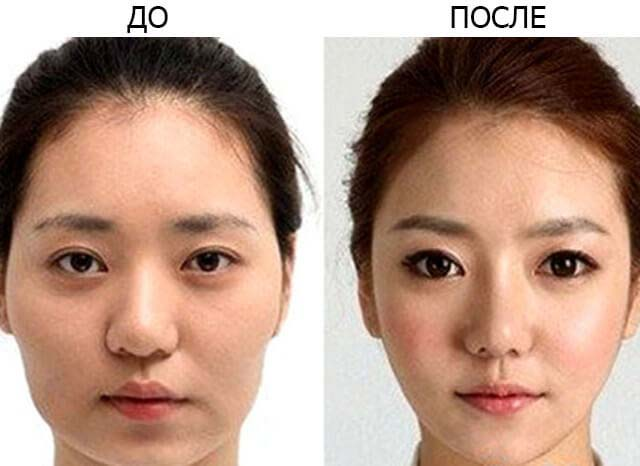 эпикантус до и после