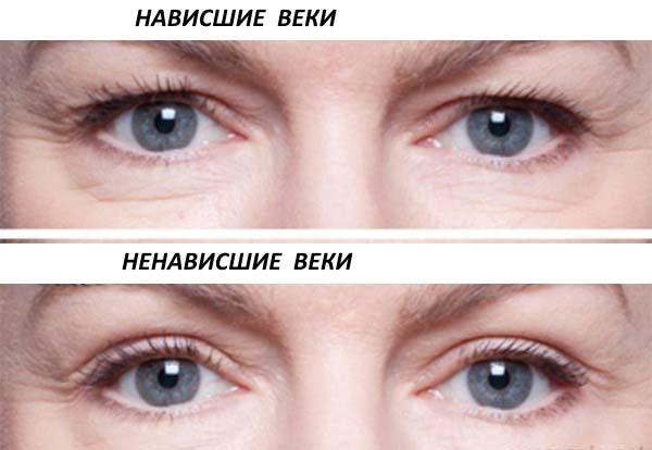 глаза с нависшим веком