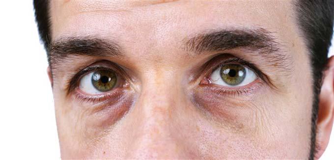 отекают глаза у мужчин