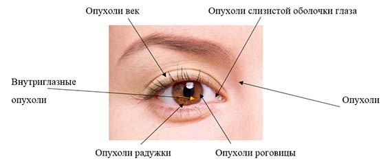 виды опухолей глаза
