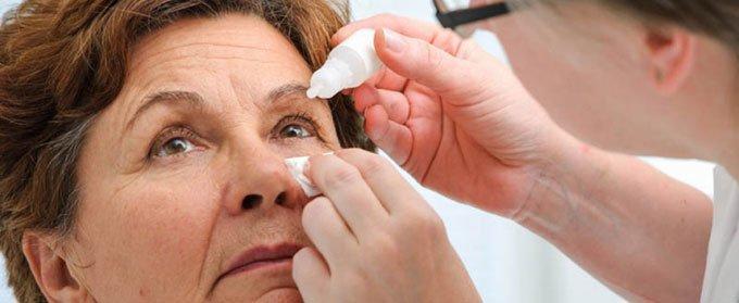 прогрессирующая офтальмоплегия