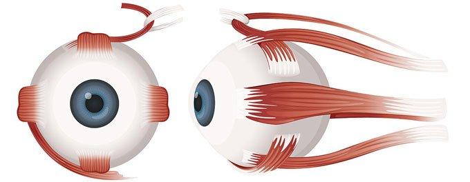 паралич глазных мышц