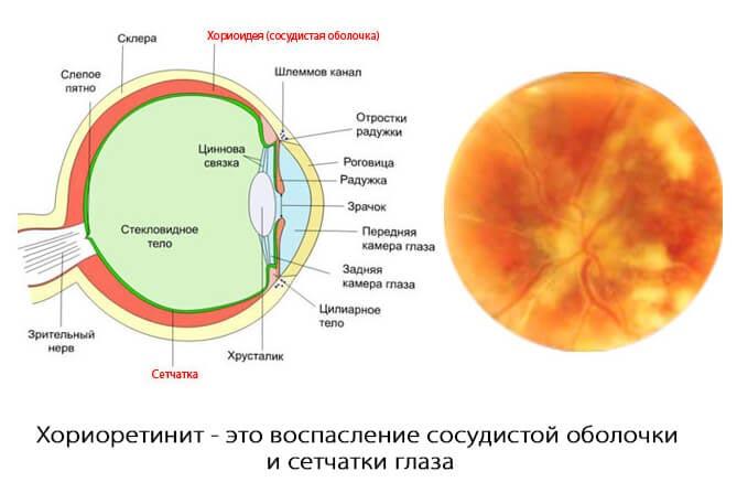 центральный хориоретинит