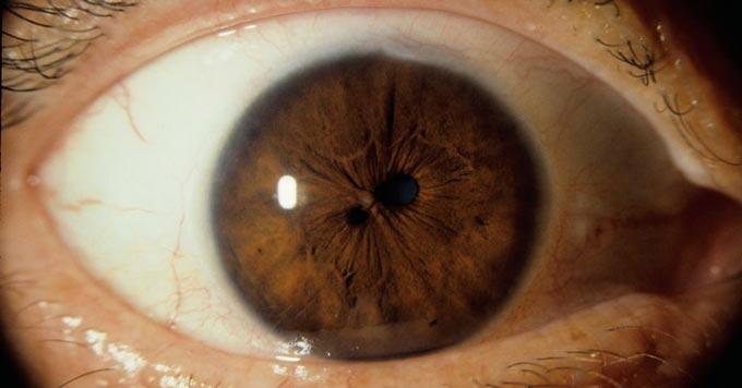 поликория глаза