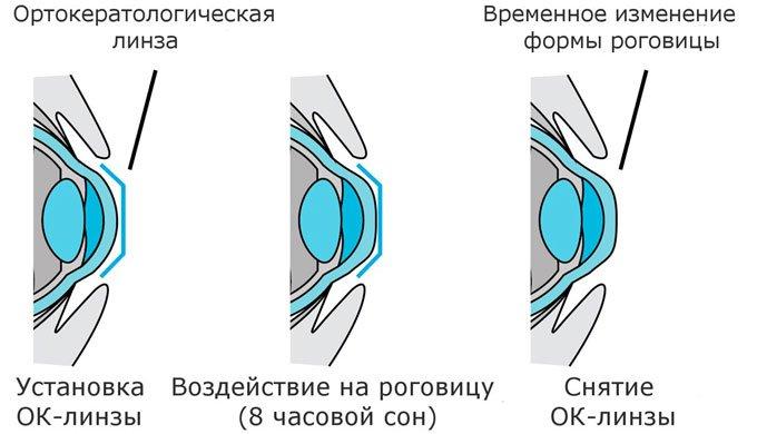 ортокератологическая линза