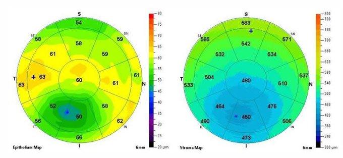 исследование поверхности глазного яблока