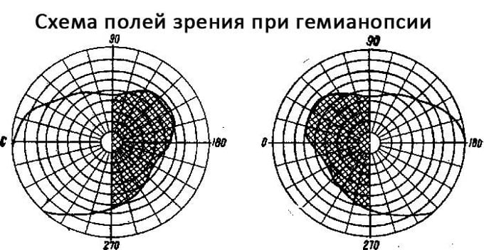 поля зрения при гемианопсии
