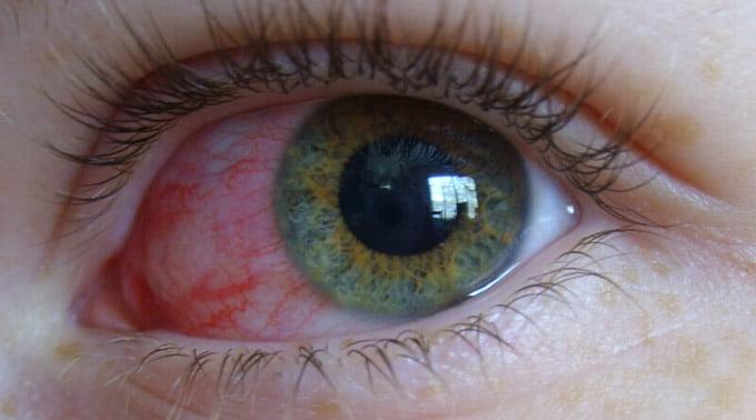 контузия левого глаза