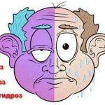 синдром горнера