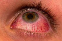 Виды острого конъюнктивита и методы лечения