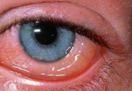 Правильное лечение аденовирусного конъюнктивита у взрослых и детей