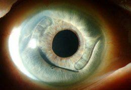 4 стадии афакии — проблемы с хрусталиком глаза